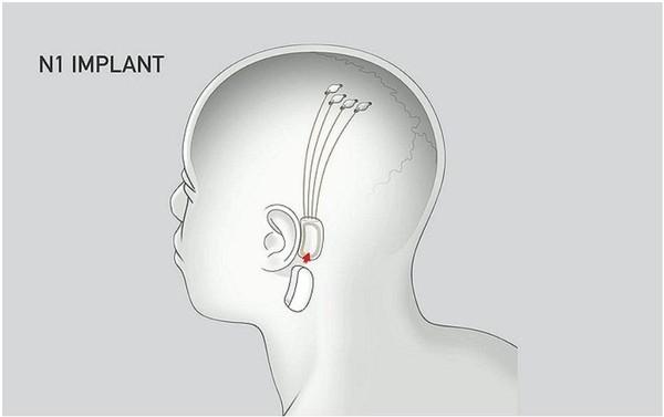 일론 머스크CEO는 뉴럴링크의 컴퓨터칩을 뇌에 이식해 기존에는 들을 수 없었던 미세한 소리는 물론 이어폰 없이도 음악을 들을 수 있다고 주장한다. (사진=뉴럴링크).